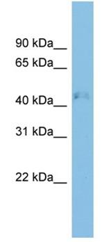 Western blot - RRAGD antibody (ab102091)