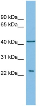 Western blot - RALB antibody (ab102093)