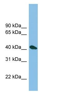 Western blot - ZNF514 antibody (ab102101)