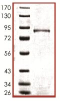 SDS-PAGE - p73 Gamma protein (ab102112)