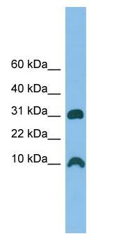 Western blot - CRIP1 antibody (ab102123)