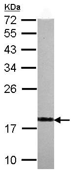 Western blot - VILIP1 antibody (ab102476)