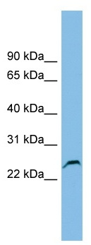 Western blot - Glutathione S Transferase kappa 1 antibody (ab102545)