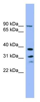 Western blot - LHPP antibody (ab102546)