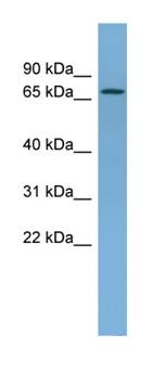 Western blot - Ndufs1 antibody (ab102552)
