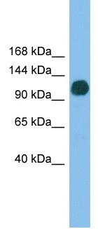 Western blot - USP36 antibody (ab102565)