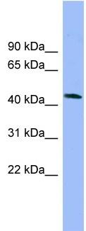 Western blot - Neuronal calcium-binding protein  antibody (ab102569)