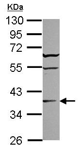 Western blot - ST6GALNAC2 antibody (ab102577)