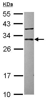 Western blot - CUTC antibody (ab102578)