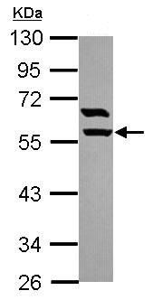 Western blot - ARHGAP15 antibody (ab102580)