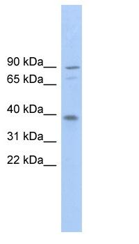 Western blot - EVER2 antibody (ab102583)
