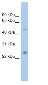 Western blot - DMRT3 antibody (ab102586)