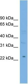 Western blot - Mannan Binding Lectin antibody (ab102593)