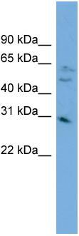 Western blot - C1orf33 antibody (ab102594)