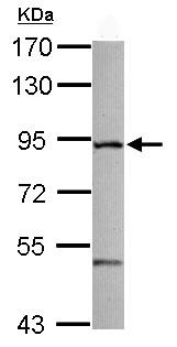 Western blot - ZFYVE1 antibody (ab102599)