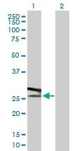 Western blot - ATP6V1E1 antibody (ab102609)