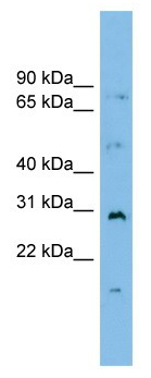 Western blot - CRSP9 antibody (ab102610)