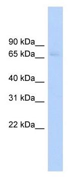 Western blot - ABCF2 antibody (ab102618)