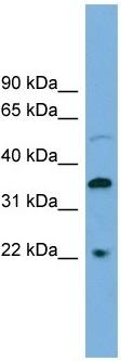 Western blot - DOK6 antibody (ab102621)