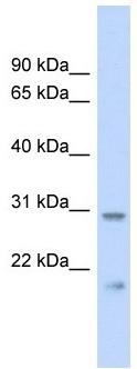 Western blot - C1orf96 antibody (ab102623)