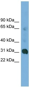 Western blot - CCDC127 antibody (ab102624)