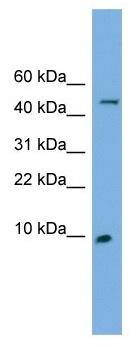 Western blot - ENSA antibody (ab102626)