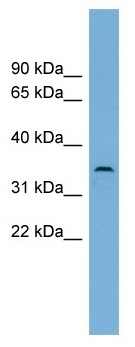 Western blot - C3orf49 antibody (ab102628)