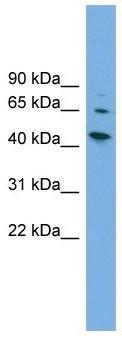 Western blot - WIPF2 antibody (ab102632)