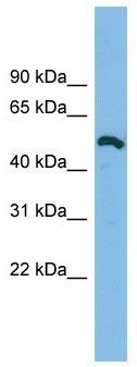 Western blot - DKFZp779O175 antibody (ab102639)