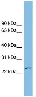 Western blot - THYN1 antibody (ab102643)