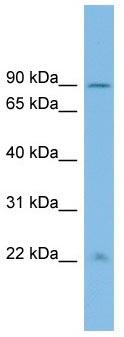 Western blot - ANKRD5 antibody (ab102655)