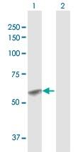 Western blot - GCNT1 antibody (ab102665)