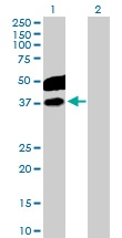 Western blot - C10orf7 antibody (ab102666)
