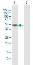 Western blot - NAGA antibody (ab102668)