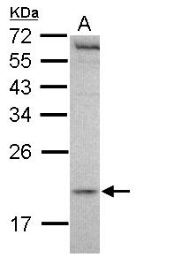 Western blot - Malignant T cell amplified sequence 1 antibody (ab102678)
