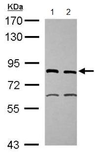 Western blot - XPD antibody (ab102682)