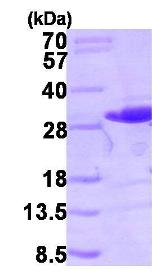 SDS-PAGE - RALB protein (ab102696)