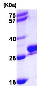 SDS-PAGE - RAB27B protein (ab102702)
