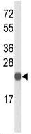 Western blot - CXXC4 antibody (ab102756)