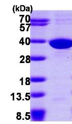 SDS-PAGE - SULT1C2 protein (ab102759)
