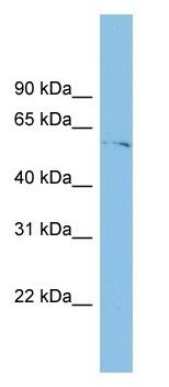 Western blot - TINAGL1 antibody (ab102762)