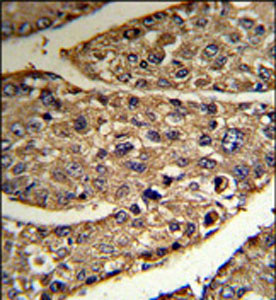 Immunohistochemistry (Formalin/PFA-fixed paraffin-embedded sections) - N myc interactor antibody (ab102769)