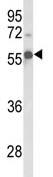 Western blot - FANCC antibody (ab102788)