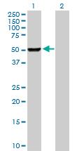 Western blot - PHGDH antibody (ab102789)