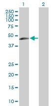 Western blot - TIPIN antibody (ab102792)