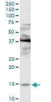 Western blot - Phospholipase A2 IIE antibody (ab102793)