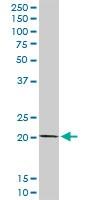 Western blot - COMMD1/MURR1 antibody (ab102794)