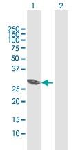 Western blot - VTI1B antibody (ab102795)
