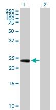 Western blot - EGFL7 antibody (ab102796)