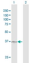 Western blot - alpha 1,2 Mannosidase IA antibody (ab102797)